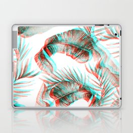 TROPICAL GLITCH Laptop & iPad Skin