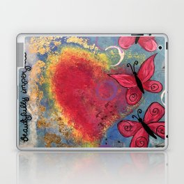 Beautifully Imperfect Laptop & iPad Skin