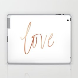 Your Love is Gold Laptop & iPad Skin