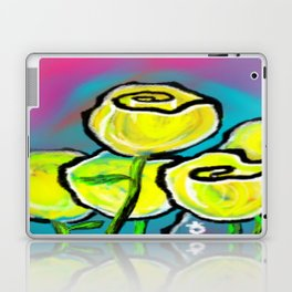 Colorful Yellow Rose Flowers with Purple Blue and Green Laptop & iPad Skin
