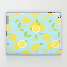 Bright And Sunny And Stamped Lemon Citrus Pattern Laptop & iPad Skin