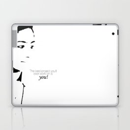 Project Laptop & iPad Skin