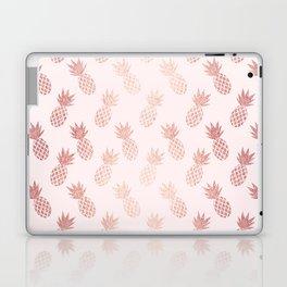 Rose Gold Pineapple Pattern Laptop & iPad Skin