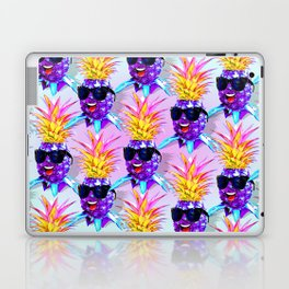 Pineapple Ultraviolet Happy Dude with Sunglasses Laptop & iPad Skin