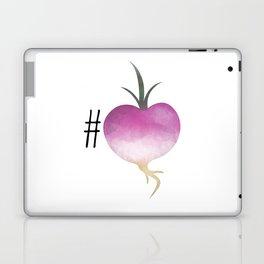 #Turnip Laptop & iPad Skin