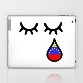 Oscar Perez Hero Venezuela Laptop & iPad Skin