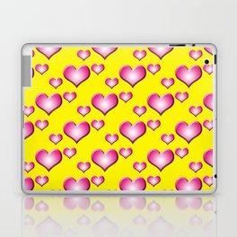 herzen collage Laptop & iPad Skin