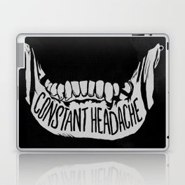 Constant Headache Laptop & iPad Skin