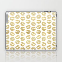 Gold Glitter Lips Laptop & iPad Skin