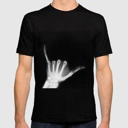 Hang Loose X-Ray T-shirt