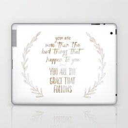 You are more than the bad things that happen to you. You are the grace that follows // Tara Laptop & iPad Skin