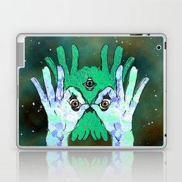 ICU Laptop & iPad Skin