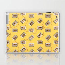 Cassette Fever Laptop & iPad Skin